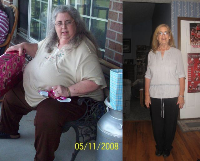 amazing_weight_loss_before_and_after_part_2_640_03