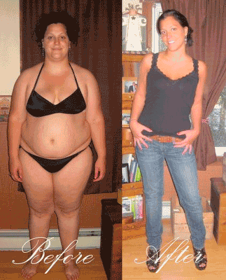 before-and-after-healthy-weight-loss-24777069-323-400