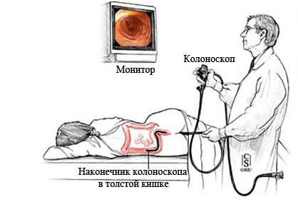 kolonoskopiya