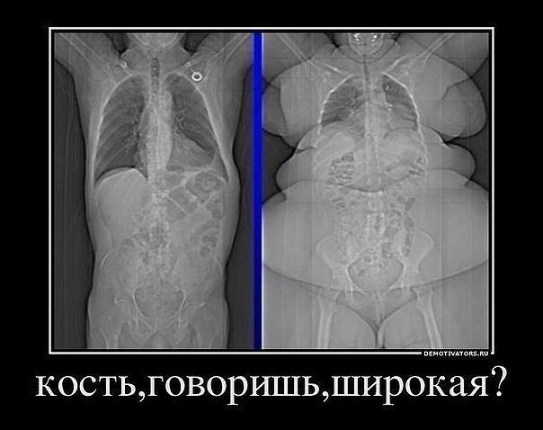 широкая кость зожник