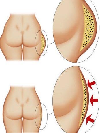 Похудение для мужчин с животом