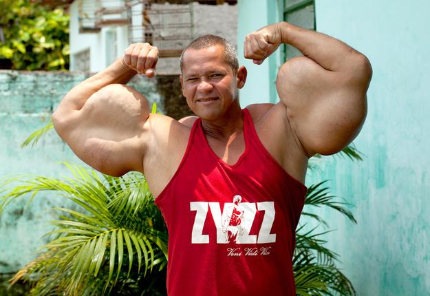 Вставные мышцы - это жутко