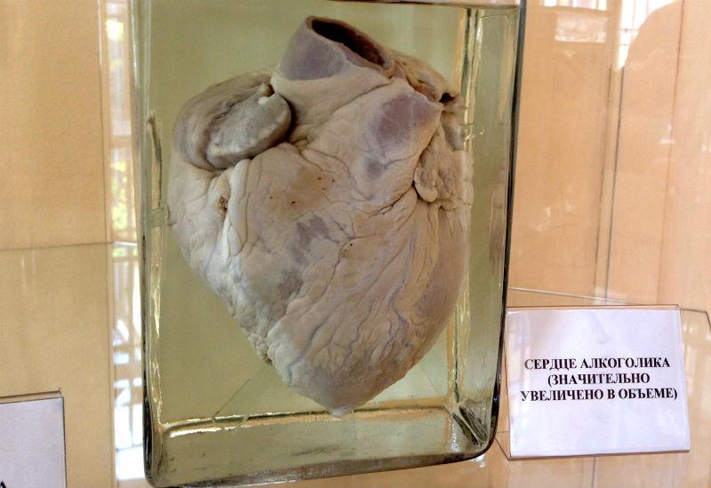 Сердце алкоголика. фото 26