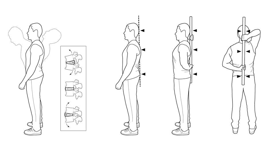 Рис 3. Нейтральное положение. На рисунке слева изменения формы межпозвонкового диска поясничного отдела в зависимости от положения тела. Справа показаны точки контроля нейтрального положения позвоночника и способ удержания гимнастической палки.