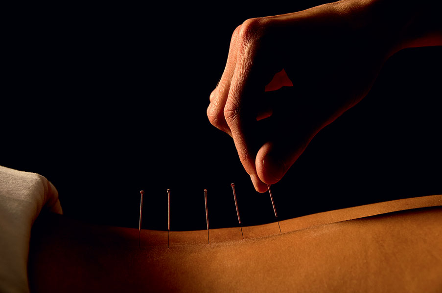 acupuncture chinese medicine Acupuncture and traditional chinese medicine have evolved over thousands of years of direct clinical application, and effectively treat a wide variety of medical conditions tcm employs multiple modalties in treatment, the most well known of which is acupuncture.