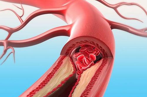 концентрация холестерина в крови норма