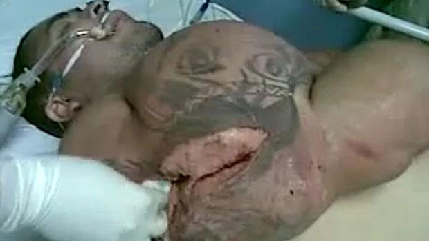 Хирурги спасают еще одну жертву.