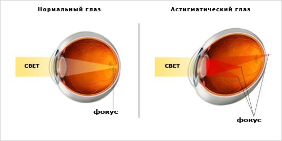 Восстановил зрение с минус 4
