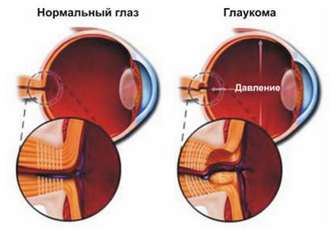 glaukoma-5501