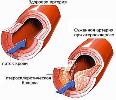 здоровая артерия и артерия с атеросклерозом