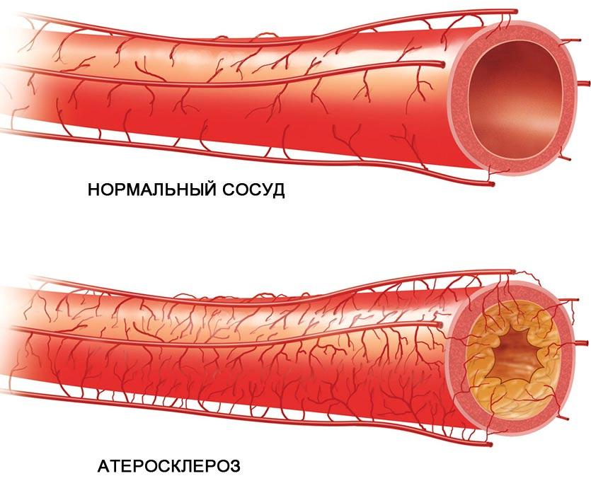 нормальный сосуд и сосуд с атеросклерозом