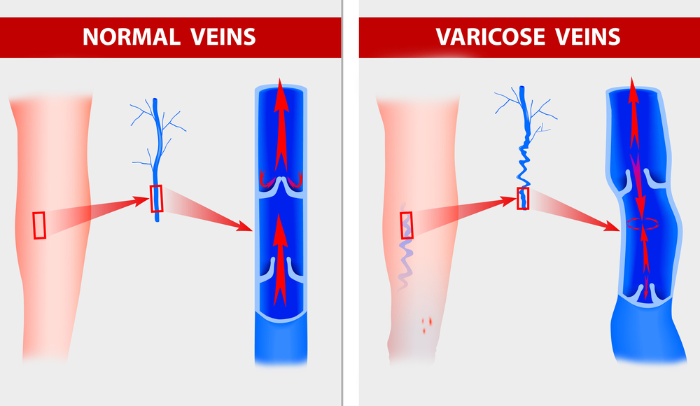 vaicose-veins-graphic