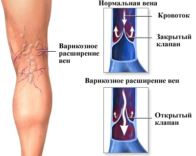 Проблемы с венами на ногах у беременной