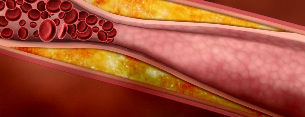 как снизить холестерина в крови у женщин