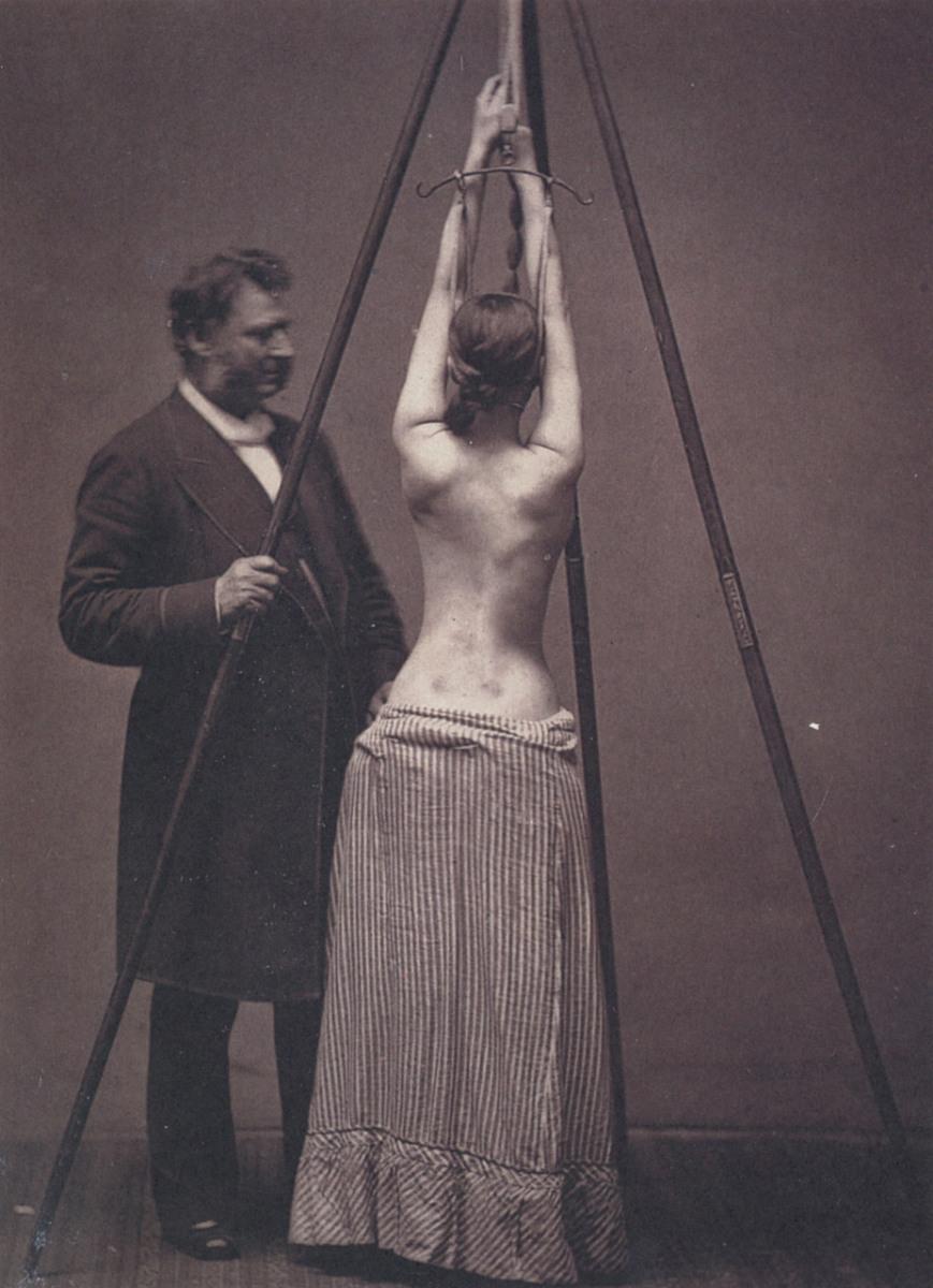 452 Лечение сколиоза, 1870–е, США