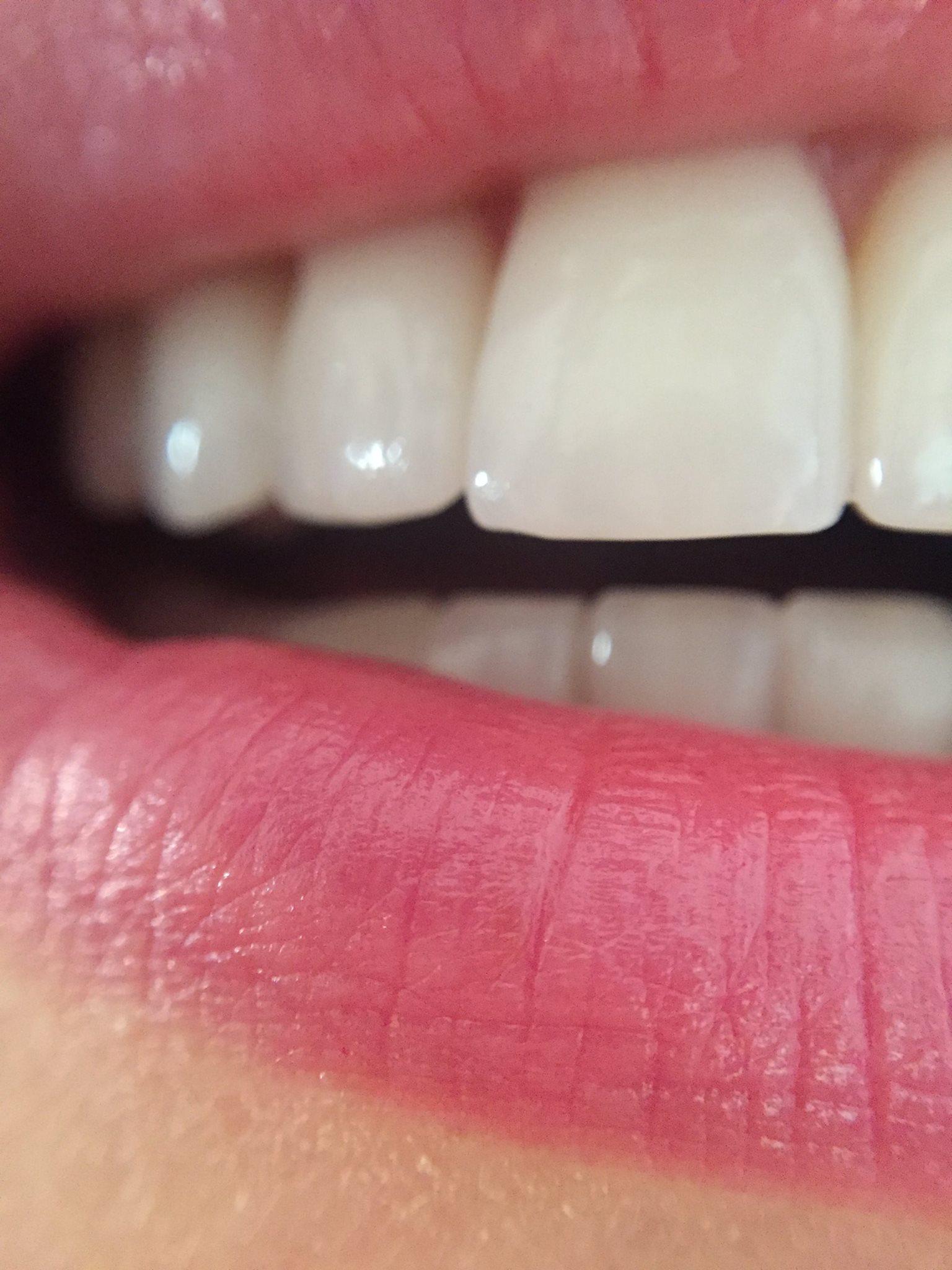 Зубы Ольги Лукинской