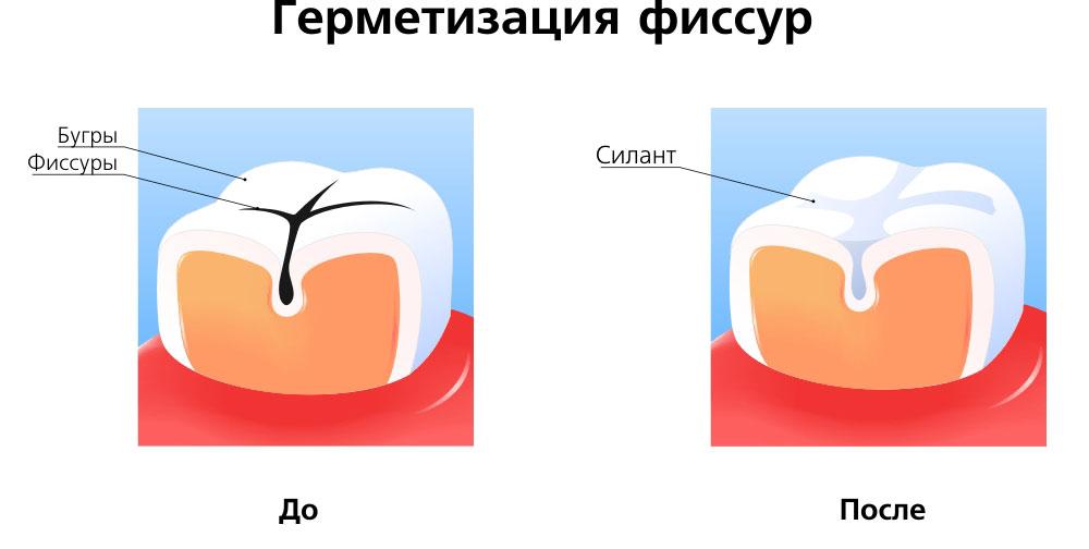 germetizaciya_fissur