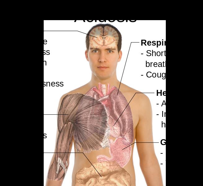 Симптомы_ацидоза