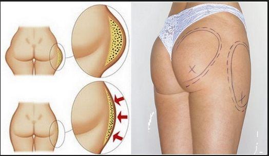 Убрать жир только с бочков - можно только хирургическим путем.