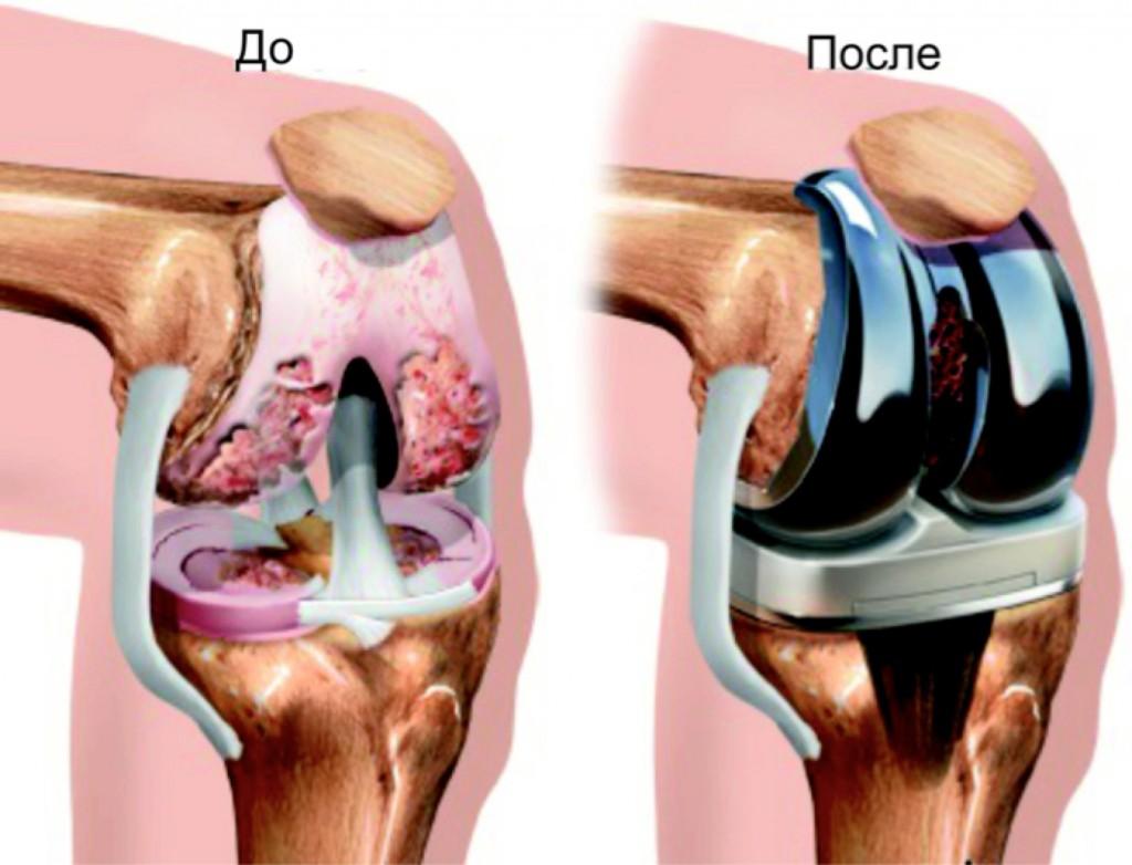 В клинике «СОВА» устанавливают иностранные протезы, которые служат до 30 лет.
