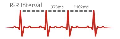 Вариативность сердечного ритма