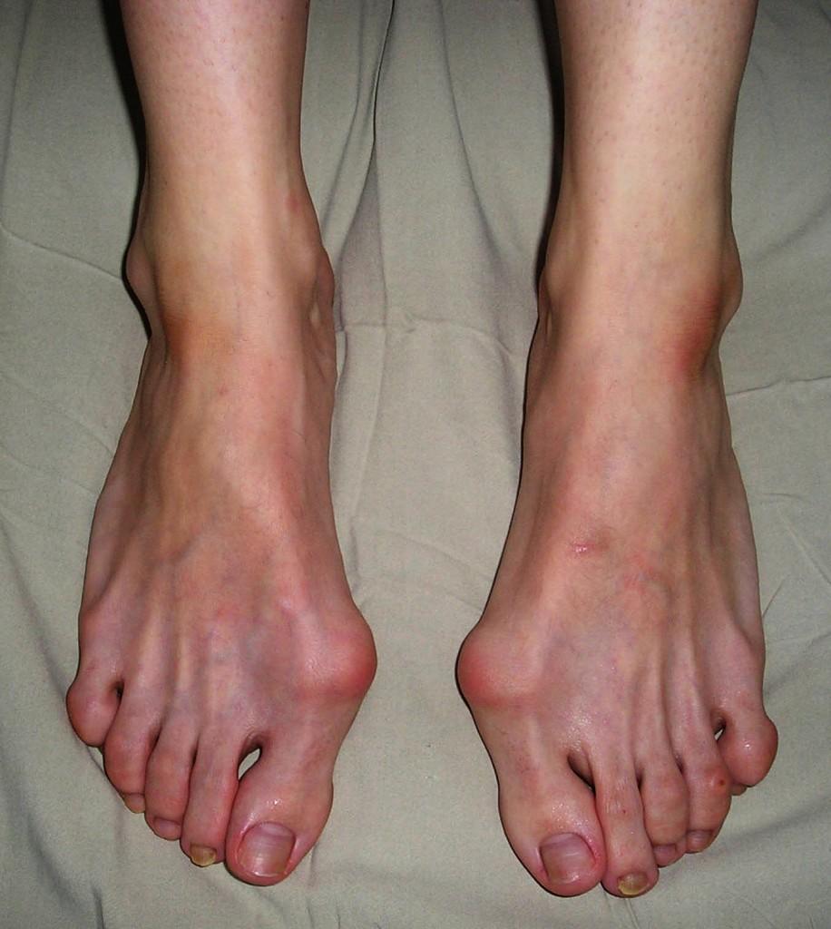 Одно из наглядных последствий вреда каблуков