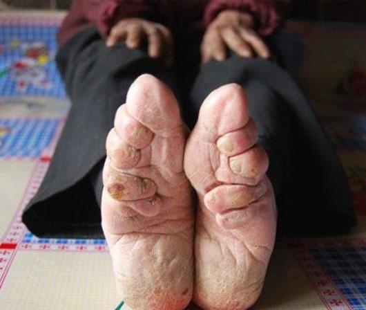 foot-binding-2