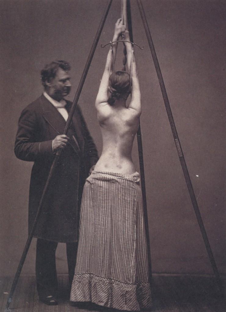 Лечение сколиоза, 1870–е, США