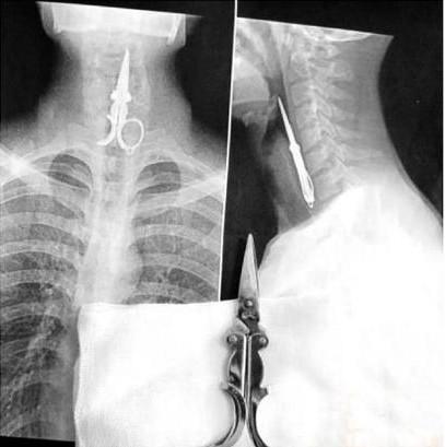 рентген9