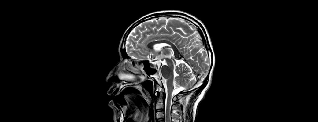 mri brain zozhnik