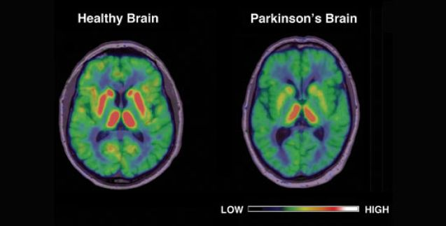 parkinson-brain-image