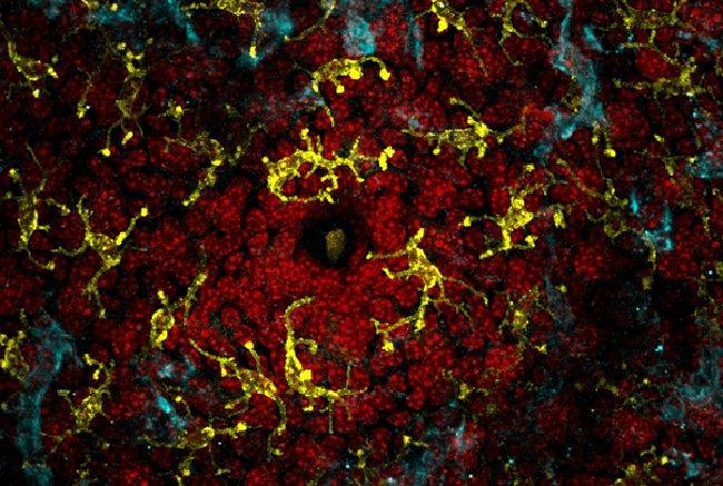zozhnik mikrobi