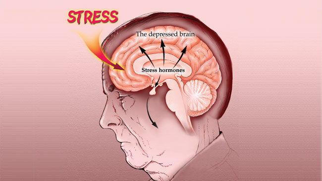 Stress Illustration