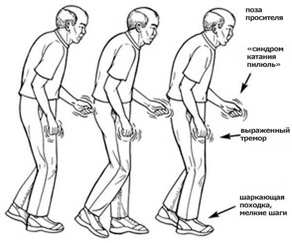 Опасная зона – болезнь Паркинсона