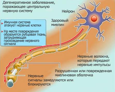 Как быстро развивается рассеянный склероз