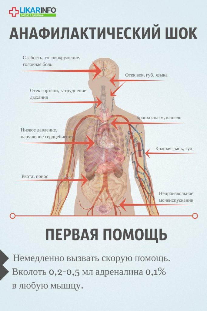 аллергия на устрицы симптомы фото