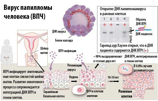Картинки по запросу Virus-pappilomy-cheloveka1