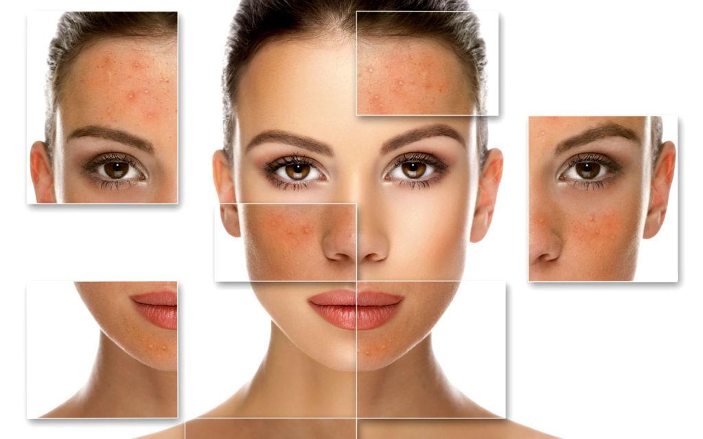 Основы косметической безопасности: как выбрать - здоровую - косметику - Зожник