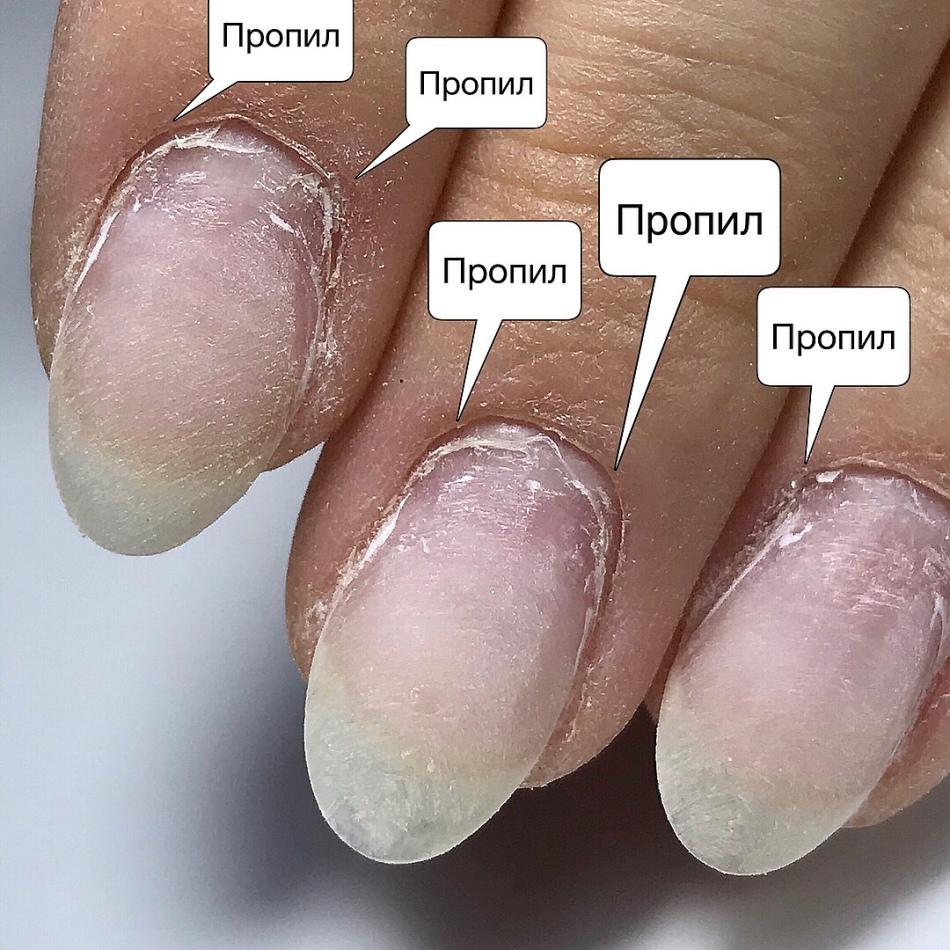 Ногти полезные свойства и противопоказания